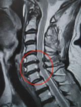 頚椎椎間板ヘルニア:T2強調矢状断像