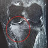 骨挫傷:STIR冠状断像
